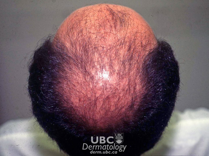 hair disorders-3 androgenetic alopecia