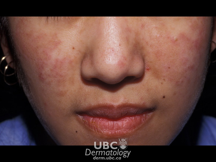 connective disease-3 lupus